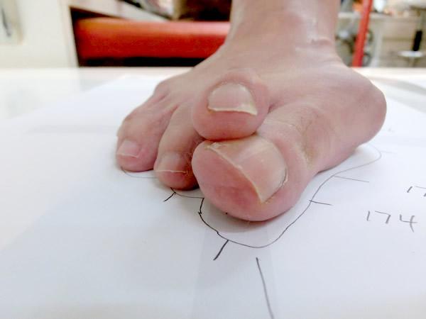 足の障害として最も有名なのはこの外反母趾でしょう。 男性にくらべ圧倒的に女性に多くみられ、足の親指の付け根の骨が、体の外側へと曲がる足の変形をさします。